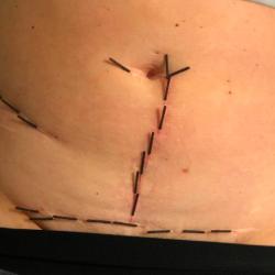 RAB godkendt Akupunktur zoneterapi kæbespændinger